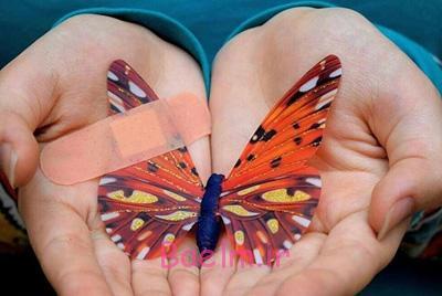 کودکان پروانهای, درمان بیماری ای بی