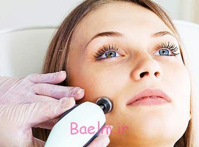 ان,درمان پرمویی زنان