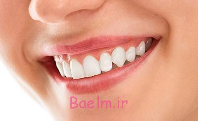 مشکل لثه و دندان ، بیماری پریودنتال , مشکلات دهان و دندان