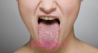 روش هایی برای درمان خشکی دهان, عوارض خشکی دهان