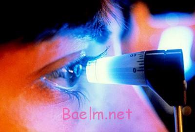 آب سیاه گلوکوم بیماری خطرناک چشمی , نابینایی
