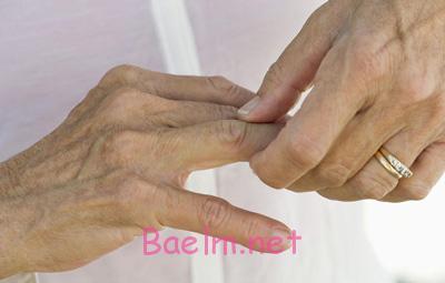 علائم بیماری آرتروز ,بیماری ارتروز