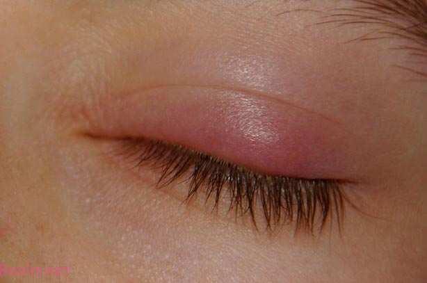 «گل مژه» به دلیل التهاب غدد چربی قرار گرفته در سطح پلکها و مژه ها ظاهر می شود.