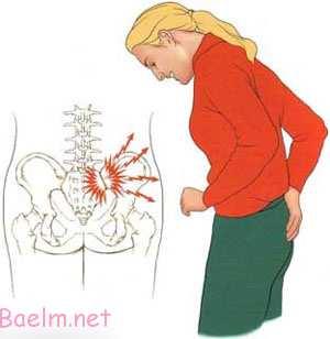 درد مقعد,درد مقعد و عدم دفع,دردهای مقعدی