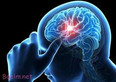 علائم سکته مغزی,برخی از علائم سکته