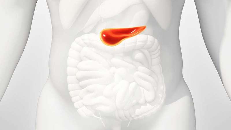 سرطان پانکراس ( Pancreatic cancer )