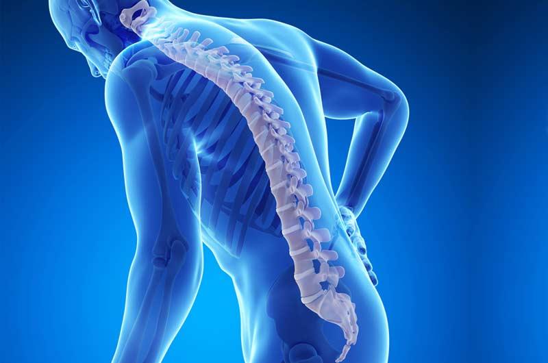 نتیجه تصویری برای osteoporosis