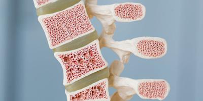راههای درمان سرطان مغز استخوان, علت سرطان مغز استخوان