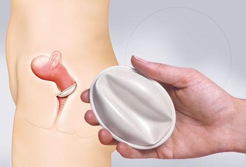 استفاده از دیافراگم برای پیشگیری از بارداری