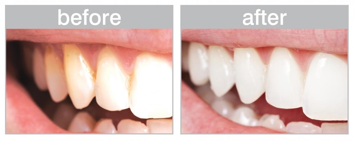 """روش های خانگی برای از بین بردن """"جرم دندان"""" و پلاک دندان"""