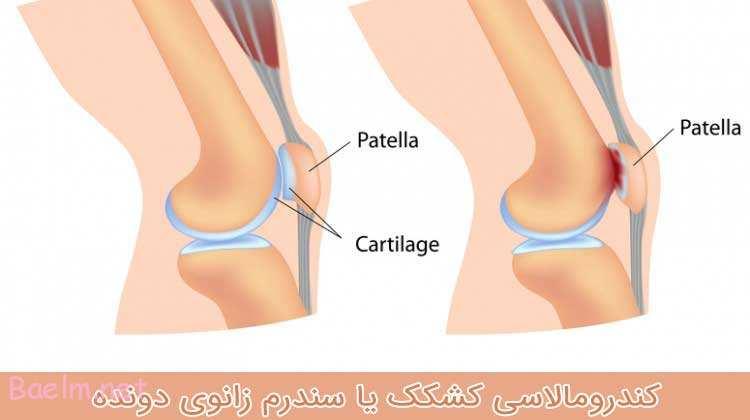 کندرومالاسی کشکک یا سندرم زانوی دونده
