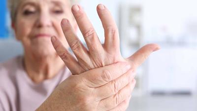 علائم بیماری در دست ها, آرتریت