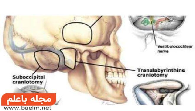 تومور عصب شنوایی، علائم و درمان تومور نوروم آکوستیک