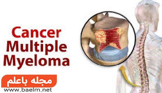میلوم متعدد یا مولتیپل میلوما یک نوع سرطان خون است و معمولا در مغز استخوان وجود دارد