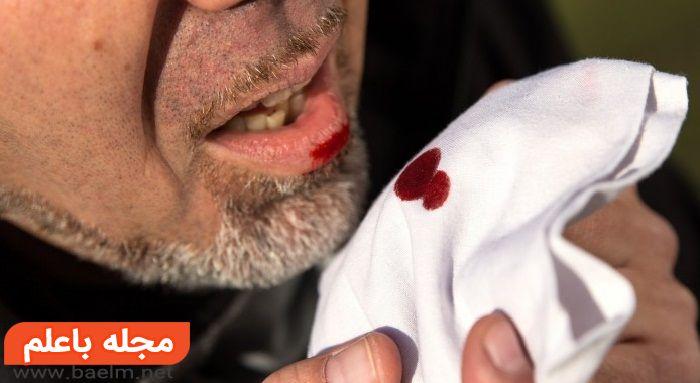 خلط خونی,درمان خلط خون آلود،علت سرفه های خونی