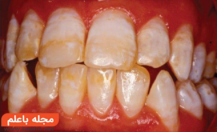 فلوئوروزیس دندانی چیست,درمان فلوئوروزیس دندانی چیست