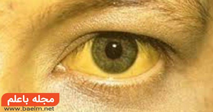 تشخیص و درمان سندرم ژیلبرت,تشخیص بیماری های کبدی