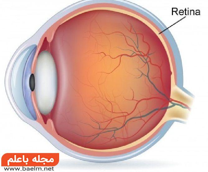بیماریهای شبکیه چشم,پارگی شبکیه چشم,خونریزی شبکیه چشم
