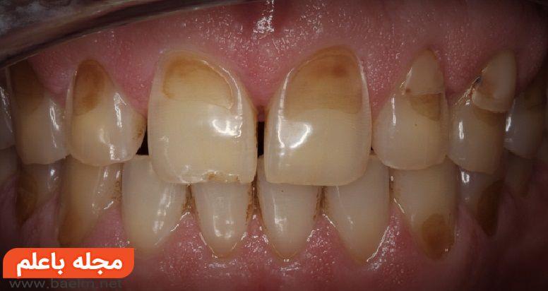 درد دندان با خوراکی های سرد و داغ,حساسیت دندان,اروژن دندان