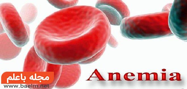 علت اصلی کم خونی,راههای درمان کم خونی همولیتیک