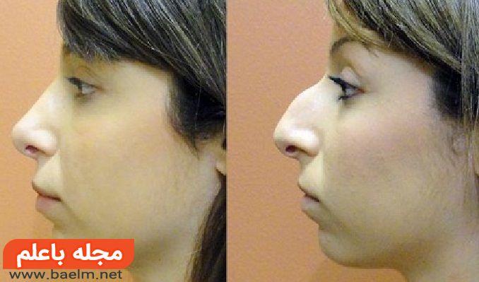 عوارض عمل انحراف بینی,درمان و جراحی انحراف تیغه بینی