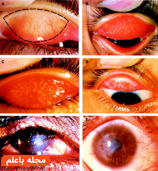 بیماری چشمی تراخم,راههای درمان بیماری تراخم