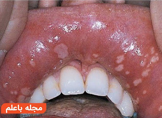 درمان آفت دهان بدون درد,درمان گیاهی و خانگی آفت دهان