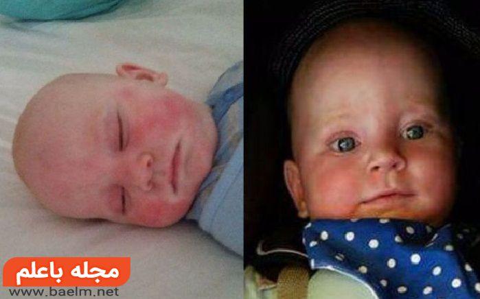برای درمان عرق سوز شدن نوزاد چه کنیم,درمان خانگی عرق سوز شدن نوزاد