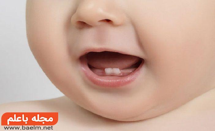 درمان درد دندان درآوردن نوزاد,مراقبت از دندان های شیری