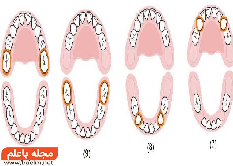 ترتیب دندان در آوردن کودک چگونه است و جایشان کجاست