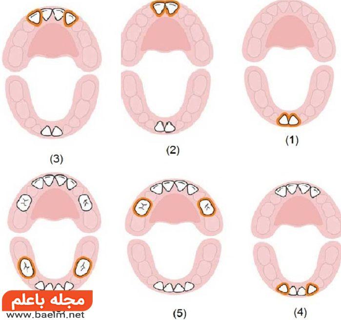 دندان های شیری نوزاد با چه روندی رشد می کنند؟