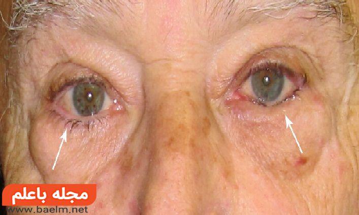 پیشگیری علت درمان انتروپیون,علائم برگشت لبه پلک به داخل چشم