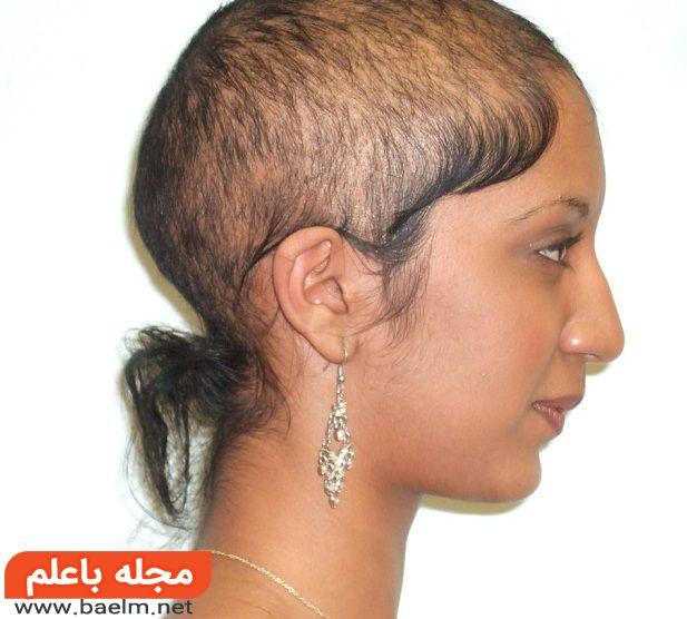 جدیدترین درمان طاسی سر,جدیدترین درمان ریزش موی ارثی,داروی رویش مو