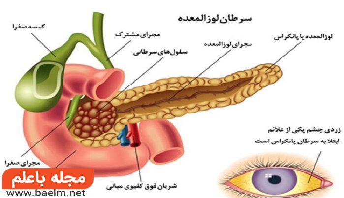 علائم و درمان سرطان پانکراس یا لوزالمعده,راههای تشخیص سرطان لوزالمعده