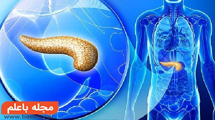 علائم و درمان سرطان لوزالمعده,درمان و تشخیص سرطان پانکراس