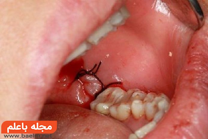 جراحی دندان عقل,مراقبت های بعد از عمل جراحی دندان عقل,عوارض کشیدن دندان عقل