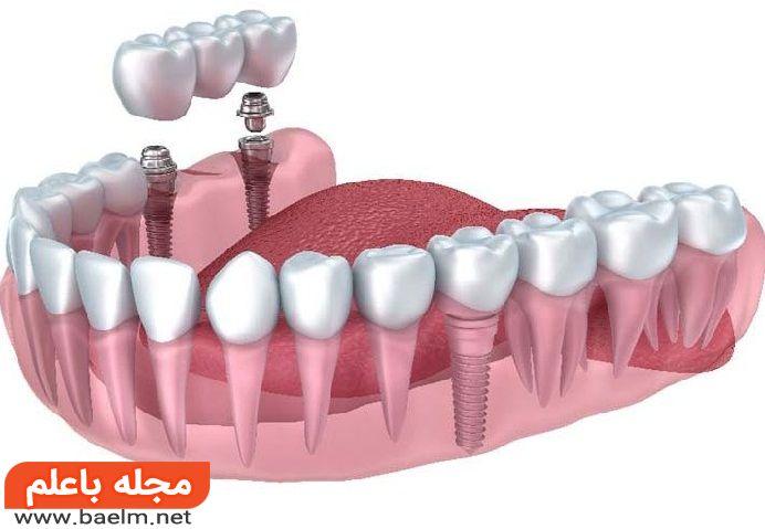 ایمپلنت دندان چیست,هزینه ایمپلنت,عوارض ایمپلنت,مراحل و انواع ایمپلنت