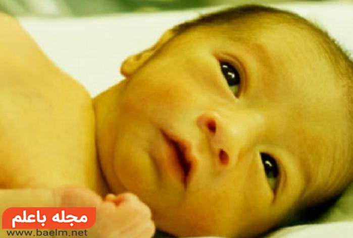 موثرترین شیوههای درمانی طب سنتی،درمان زردی نوزادان با گیاهان دارویی