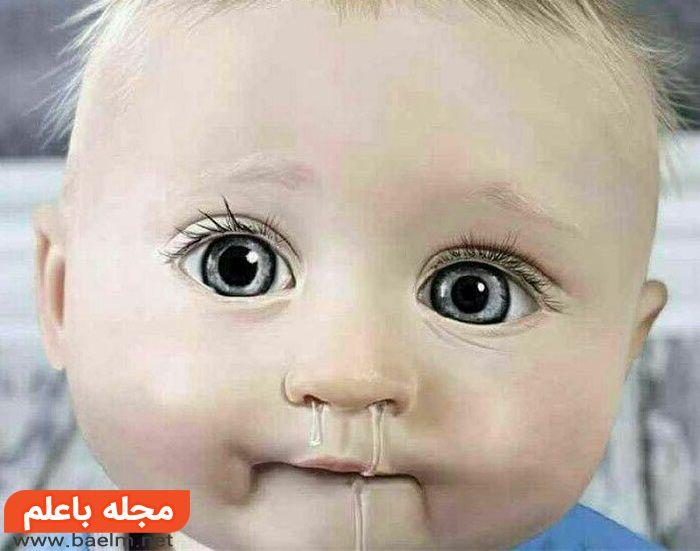 درمان گیاهی آلرژی در کودکان,آلرژی در کودکان,داروی ضد حساسیت پوستی کودکان