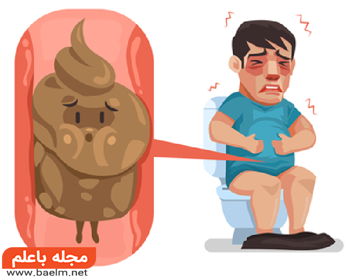 درمان گیاهی و خانگی یبوست,درمان یبوست شدید,راههای درمان یبوست