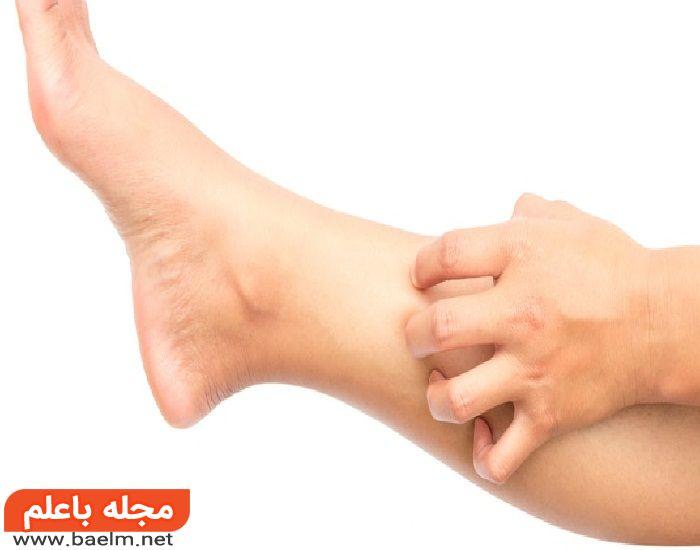 علت خارش پا,سرطان پوست دلیل خارش پا,خارش پوست و بیماری های کبد