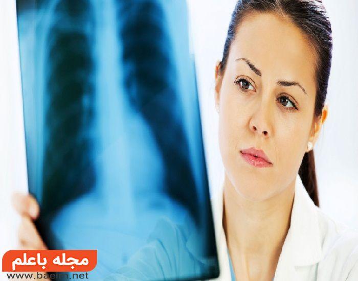 نشانه ها و علائم سرطان ریه,چگونه بفهمیم ریه سالم داریم,عکس ریه در بدن