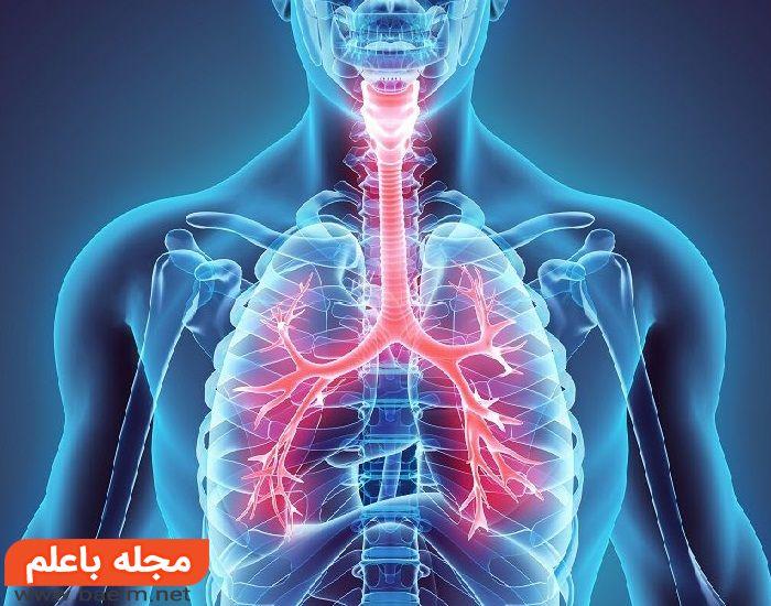 نشانه ها و علائم سرطان ریه,درد ريه,علائم عفونت ریه,اسپاسم ریه