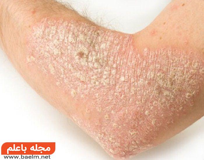 درمان پسوریازیس,بیماری صدف,بیماری صدف پوستی,درمان بیماری صدف پوستی