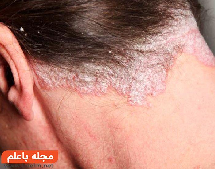 دارو و درمان پسوریازیس,راههای درمان بیماری صدف و پسوریازیس,علت و علائم پسوریازیس