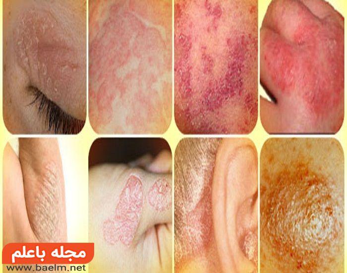 روش درمان بیماری صدف,علائم بیماری صدف,دارو و درمان پسوریازیس,علت پسوریازیس و درمان