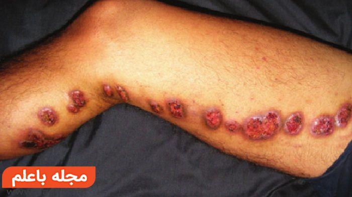 علت و علائم اسپوروتریکوز,درمان اسپوروتریکوز,تشخیص اسپوروتریکوز,قارچ و عفونت پوستی