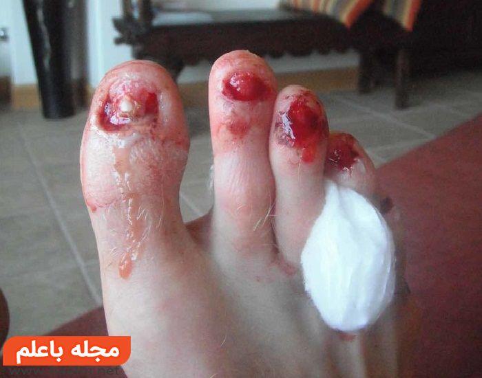 درمان بیماری پای ورزشکار,بیماری پای ورزشکار چیست و چگونه درمان میشود؟
