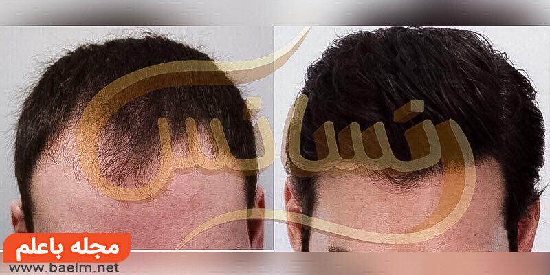 کاشت مو -ترمیم مو - کاشت ابرو - کاشت ریش