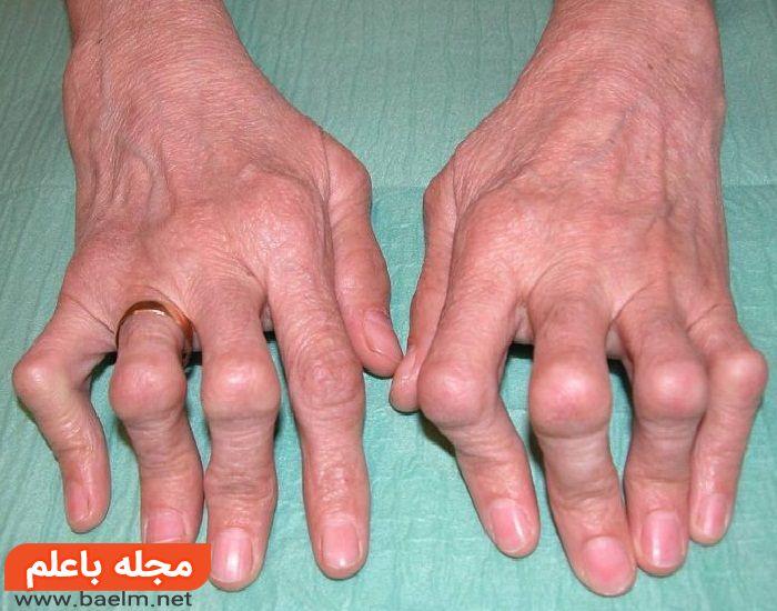 درمان خانگی درد مفاصل,آرتریت روماتوئید,علت درد مفاصل,آرتریت,علت آرتروز زانو